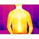 Aplicatii camere termografice in Medicina